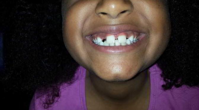 poco spazio tra i denti