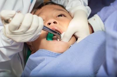 dentini da latte cariati