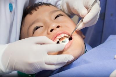dentini da latte distanziati