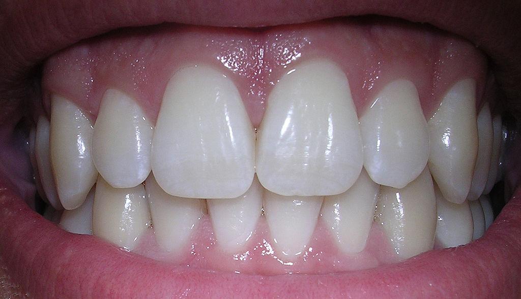 dentista gratis
