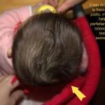 testa piatta neonato