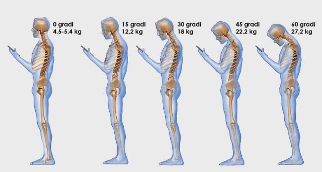 cellulare e male alle spalle